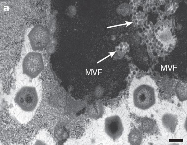 Кара төстәге өлкә – амеба цитоплазмасында мимивирусның «вируслар фабрикасы». Зур алтыпочмаклыклар – өлгерүнең төрле стадиясендәге мимивирус кисәкчәләре. Уклар белән иярчен вирус тупланган урыннар күрсәтелгән. Масштаблы сызгычның озынлыгы 200 нм. Фото Nature мәкаләсеннән алынды.